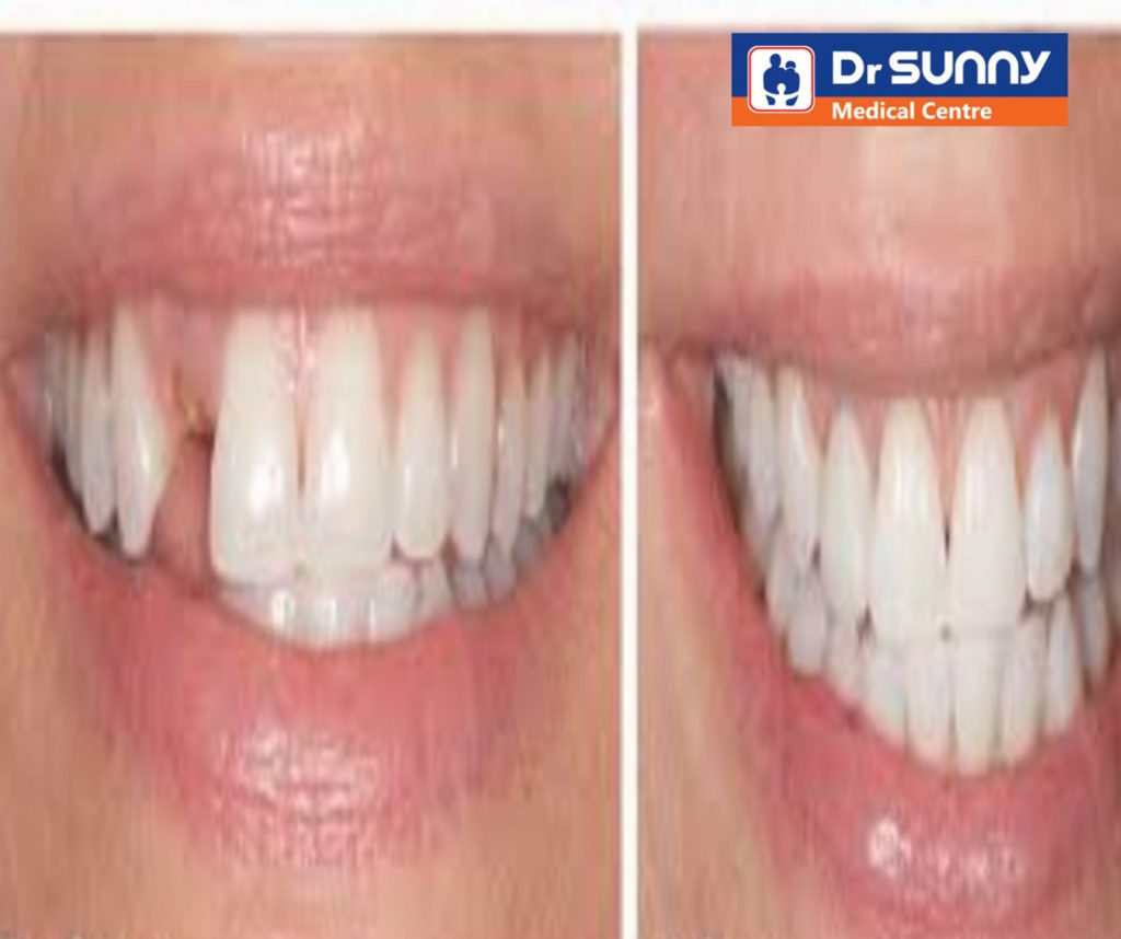 Implants in Dentistry