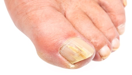 Nail Surgery and Toenail Surgery