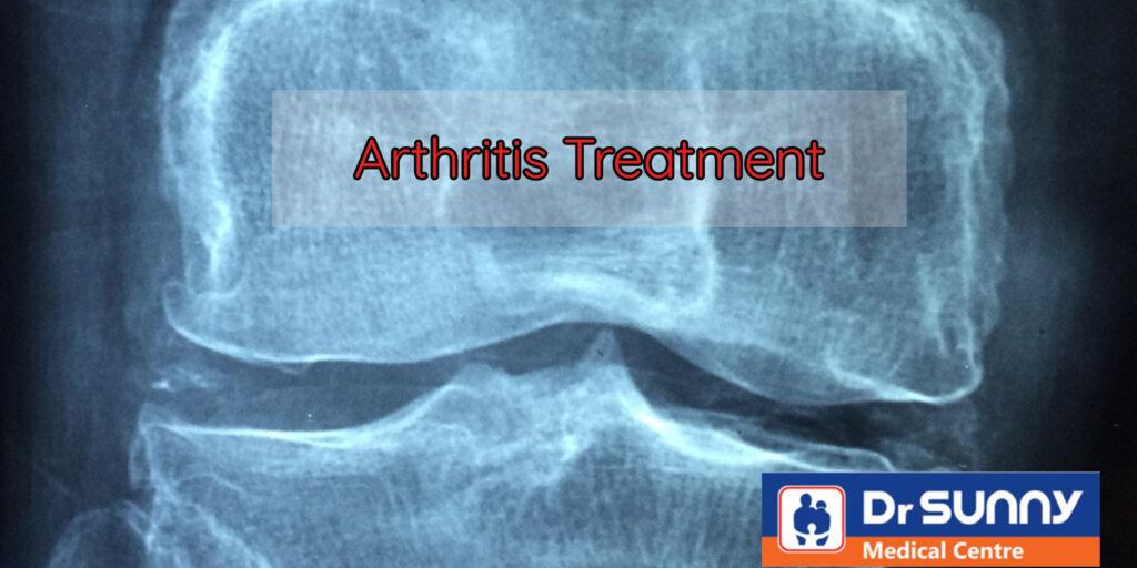 Orthopedic surgeon for arthritis treatment