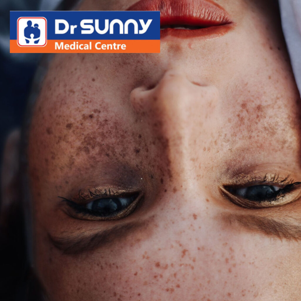 Skin Pigmentation in Dermatology